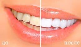 Отбеливание зубов чувствительных москва